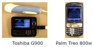Ultrasound smartphone