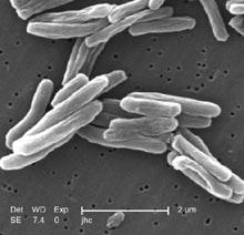 Mycobacterium_tuberculosis_2